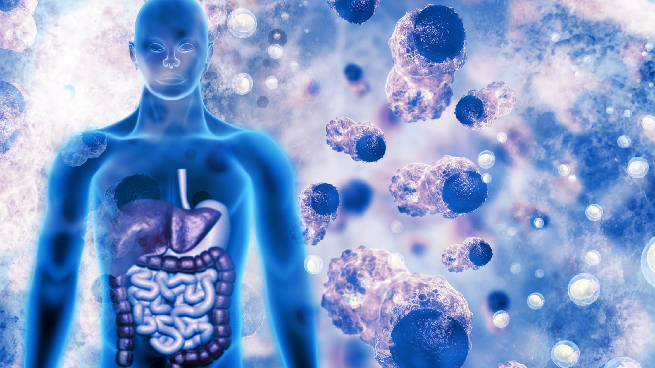 Colorectal Cancer Risk Factors: Part 2