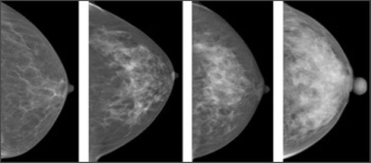 Breast Density, Say What?